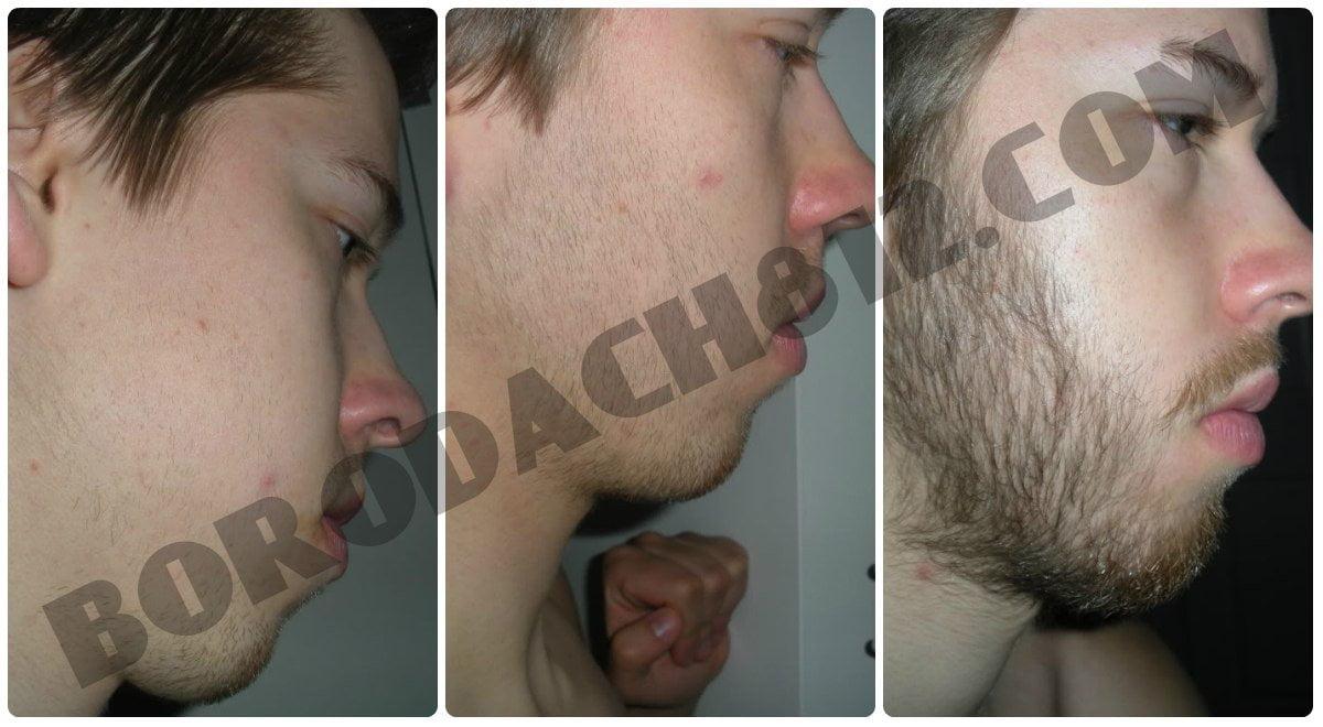 Сухое масло для волос dove преображающий уход отзывы