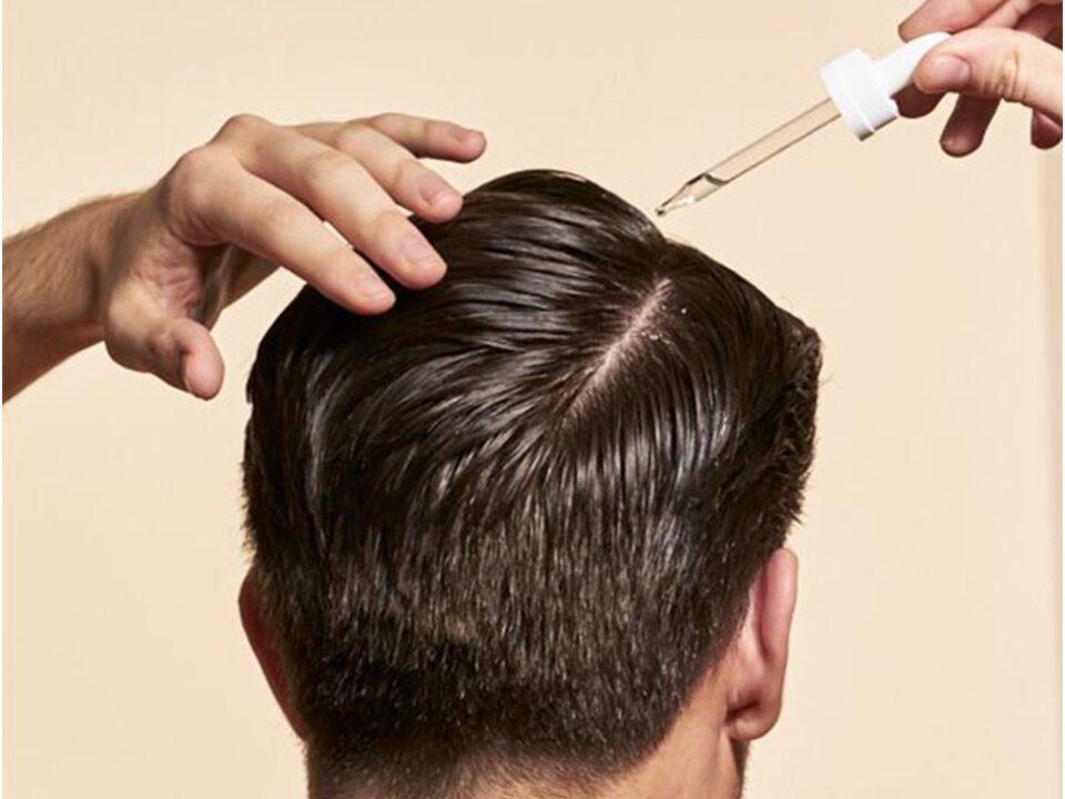 применение препарата для лечения проблемы роста волос